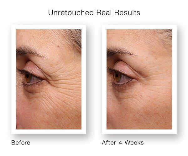 crema retinol mabox